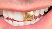 Gold Crowns in Glendale CA, Dr. Lucio H. Kim, DDS