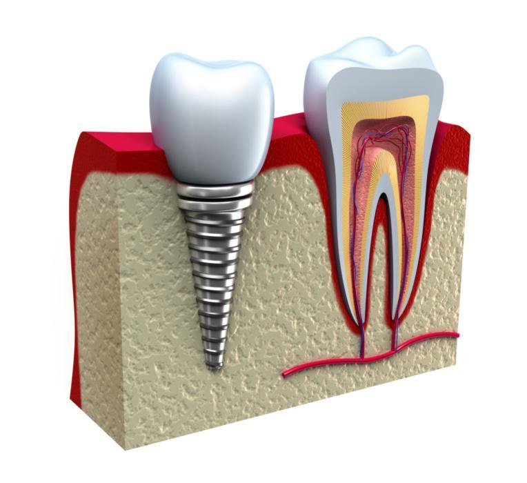 Tooth Replacement in Glendale CA
