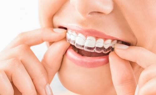 Woman with Invisalign | Adult orthodontics in glendale ca
