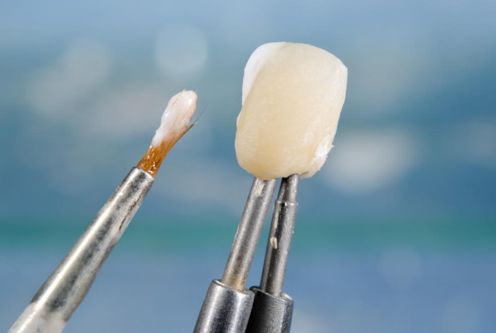 Tooth Restorations in Glendale