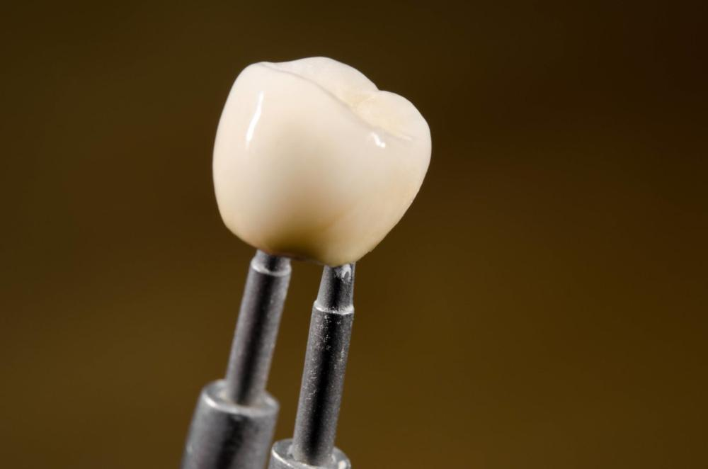 dental crowns | Glendale CA dentist