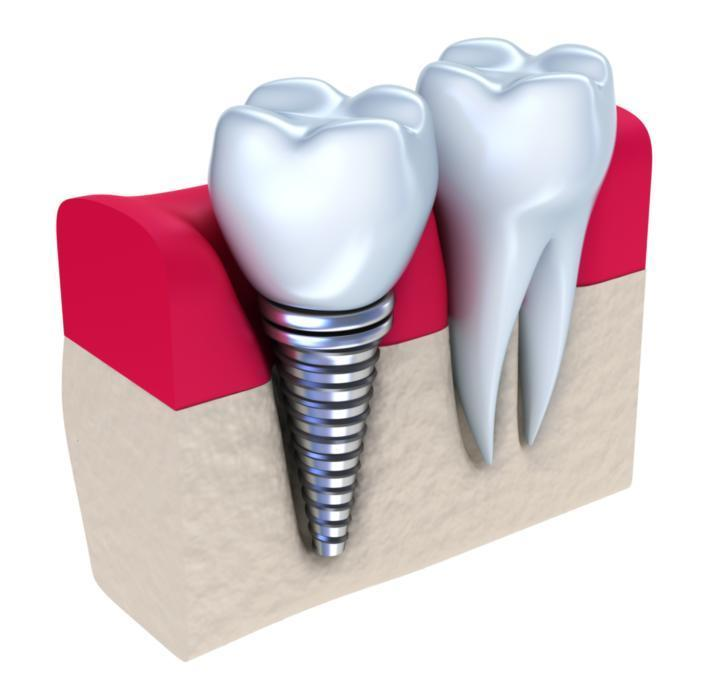 Dental implant diagram | dental implants in glendale ca