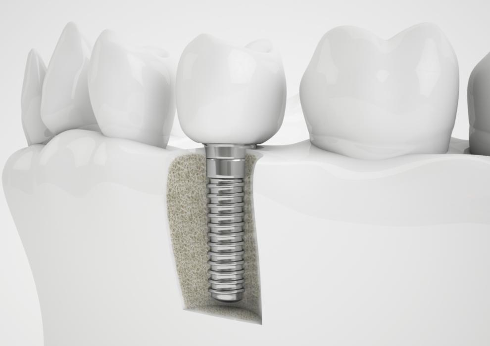 Tooth Replacement in Glendale