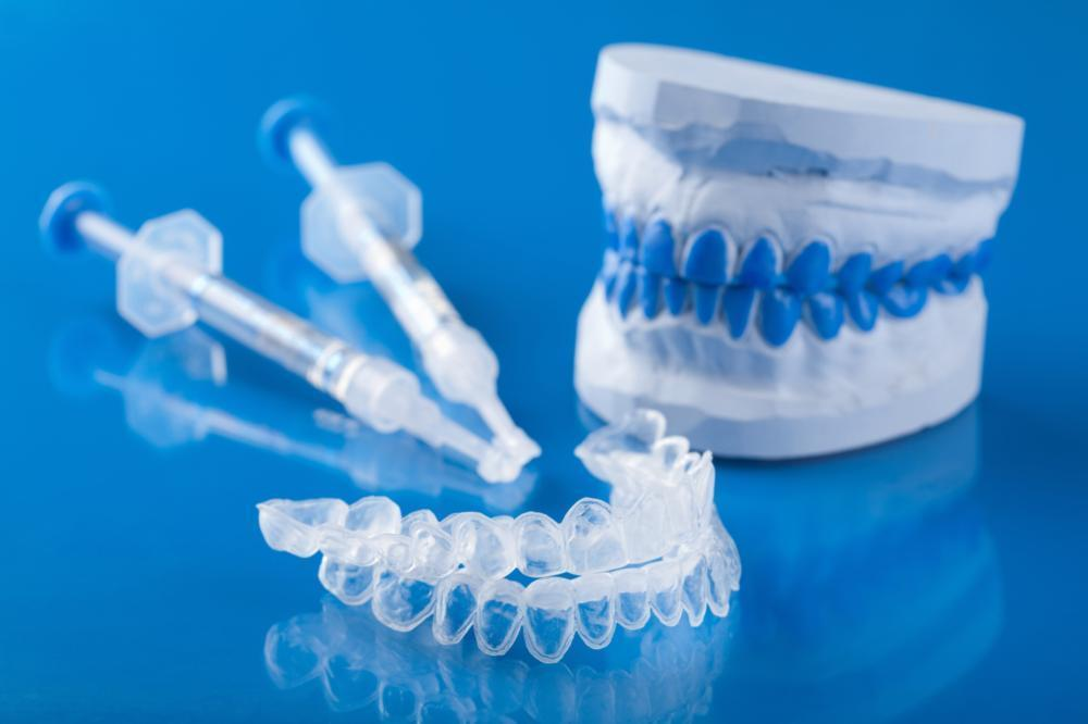 teeth whitening kit | dentist glendale ca