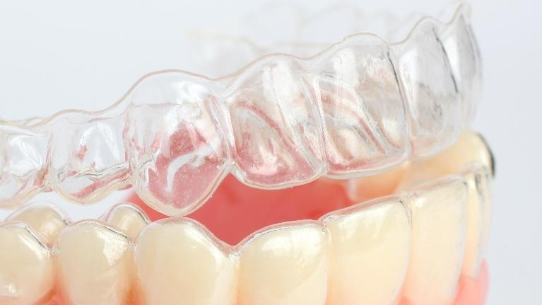 Orthodontics in Glendale CA