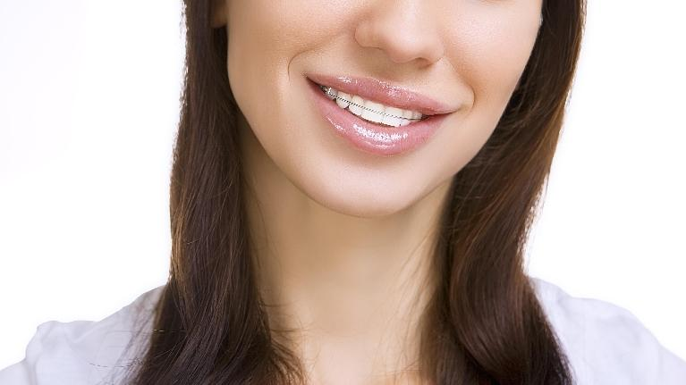 Caring for Your Teeth after Orthodontic Treatment | Lucio H. Kim, DDS