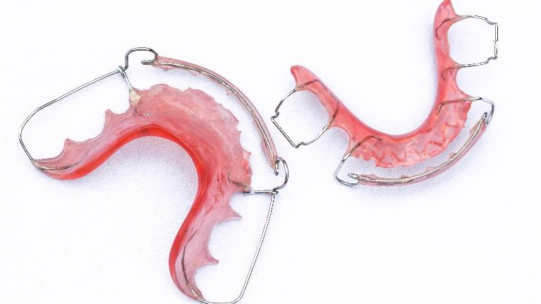 Tips for a Clean Retainer | Family Dentistry