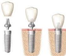 Dental Implants in Glendale CA, Dr. Lucio H. Kim, DDS