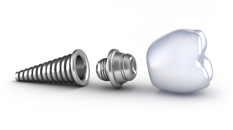 Deciding on Dental Implants | Lucio H. Kim, DDS