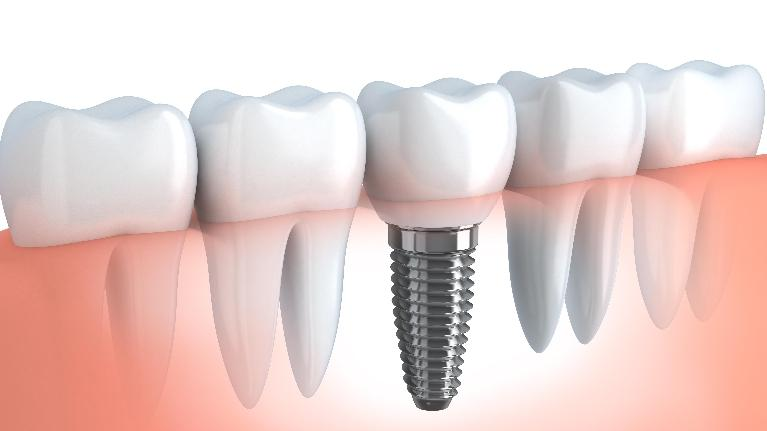 Dental Implants by Dr. Lucio H. Kim, DDS, Glendale CA