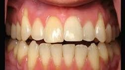 Gum Recession Prevention in Glendale CA, Dr. Lucio H. Kim, DDS