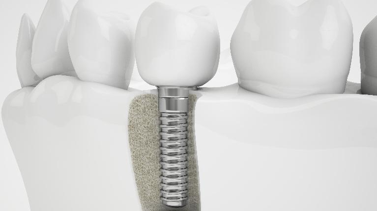 Dental Implant Preparation in Glendale CA, Dr Lucio H. Kim, DDS
