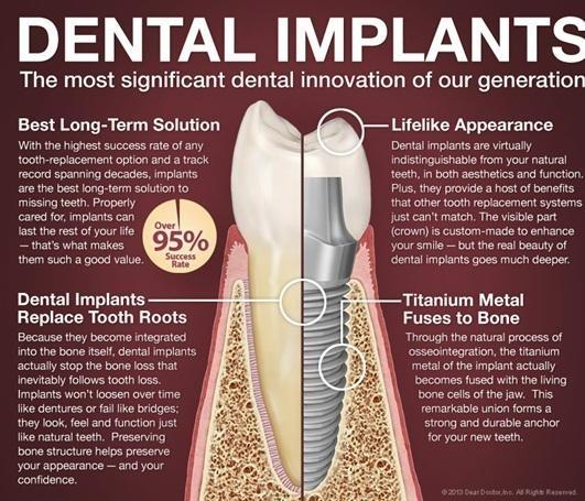 Diagram of dental implant | Lucio H. Kim, DDS