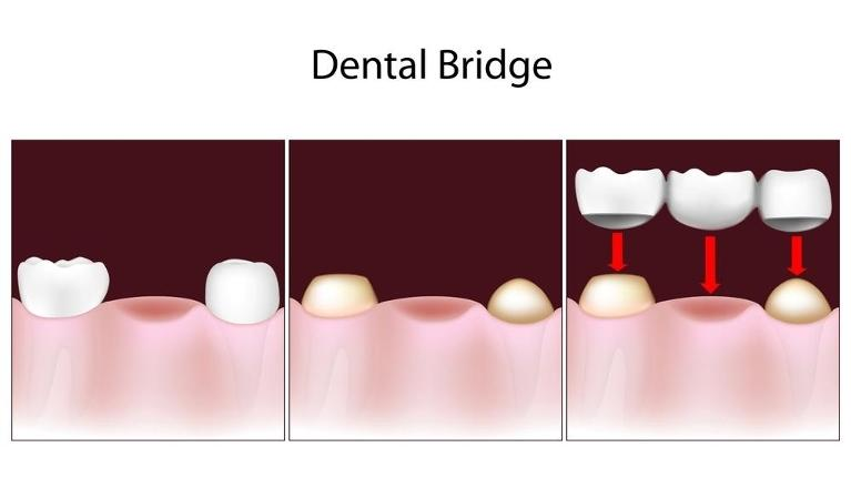 Dental Bridge | Lucio H. Kim DDS
