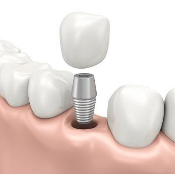 Dental Implant | Lucio H. Kim DDS