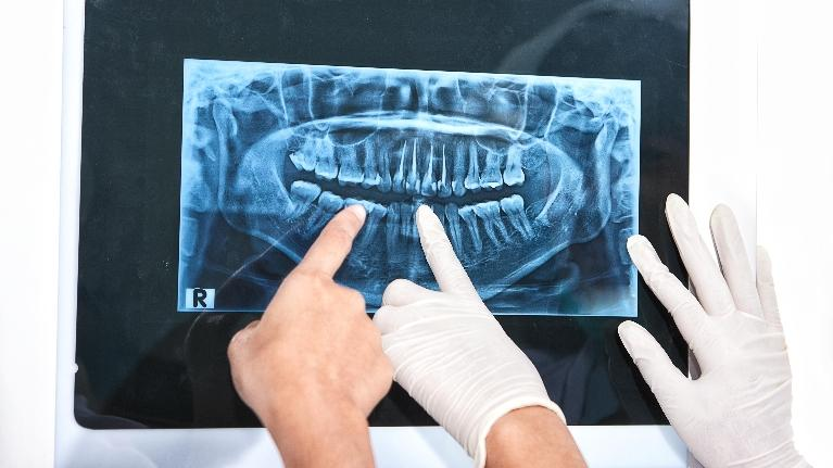 Dentists looking at x-ray | dentist glendale ca