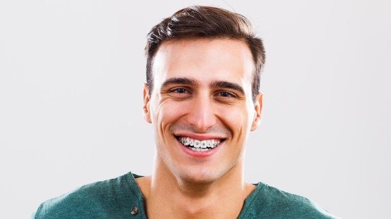 Man with braces | Adult Orthodontics in Glendale CA, Dr Lucio H. Kim
