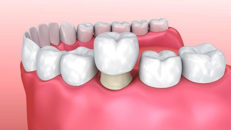 Diagram of how a tooth replacement procedure works