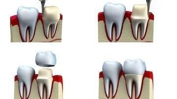 dental crown diagram | Dentist Glendale CA