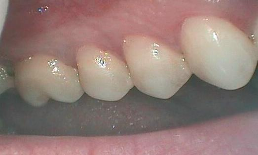 Gum Recession Treatment in Glendale