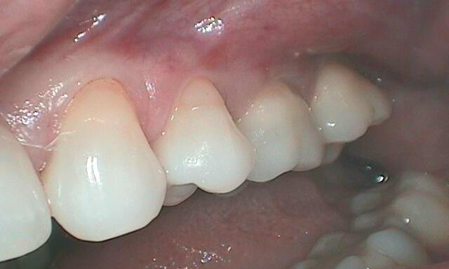 Gum-Recession-Before-Image